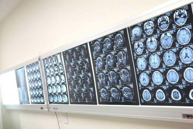 CT検査でも見逃すことが稀にある